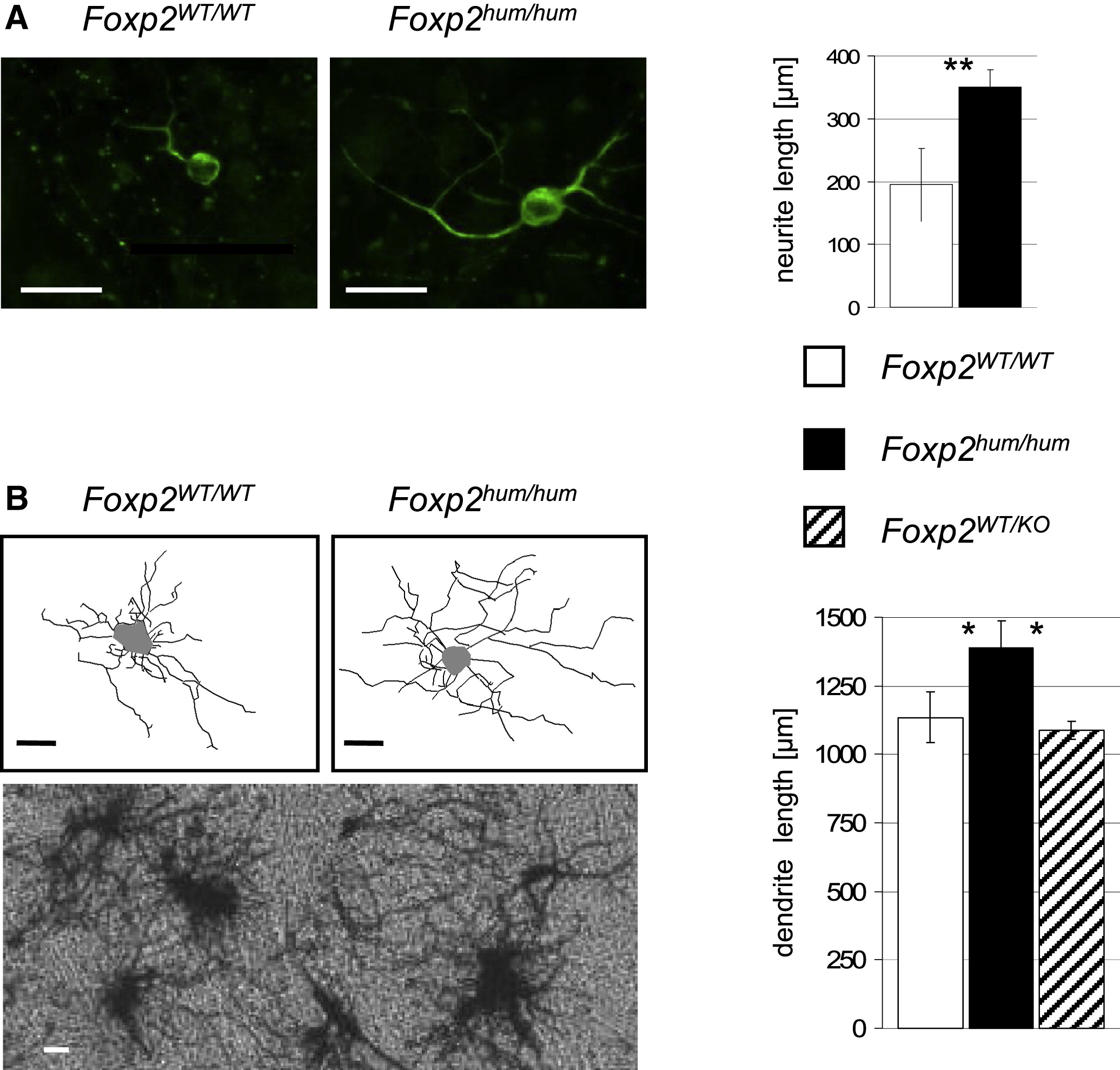Increased Dendritic Length
